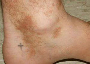 липоидный некробиоз кожи голеней