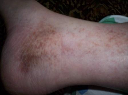 Лечение варикоза зелёными помидорами
