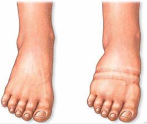 препараты можно принимать при отеках ног