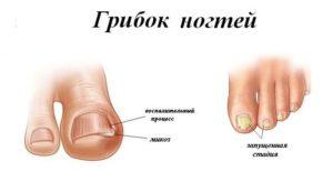 препараты можно выбрать для лечения грибка ногтей