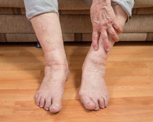лечение отека ноги ниже колена