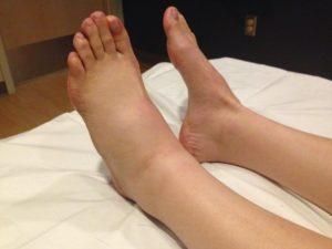 Причины припухлости ноги ниже колена