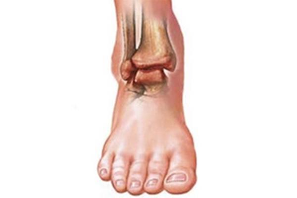 Резкие боли суставы ног