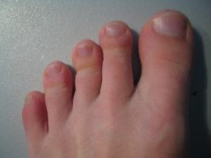 Из-за чего палец может болеть