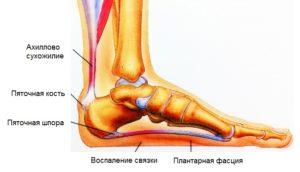 Как уменьшить боль в пятке правой ноги