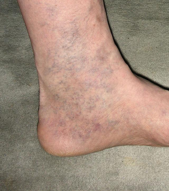 Сахар диабет на ногах красный