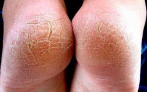 трескается кожа на пятках на ногах
