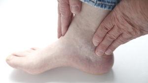 Симптомы и лечение подагрического артрита голеностопного сустава