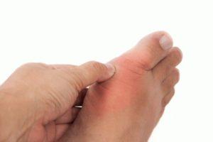 лечение подагрического артрита голеностопного сустава