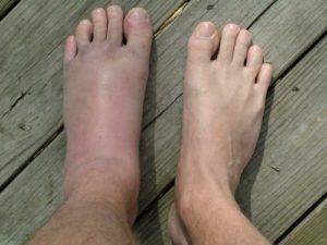 Причины развития подагрического артрита