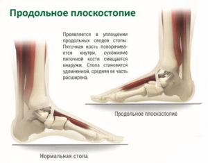 лечение продольного плоскостопия 1 степени