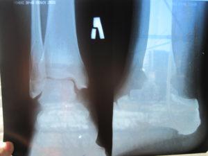 Сколько срастается перелом ноги в голеностопе