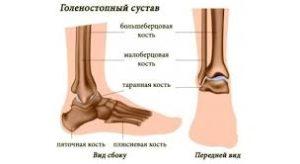 Перелом ноги в голеностопе: симптоматика, признаки