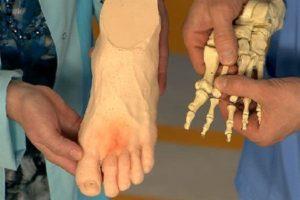 Какие бывают переломы 5-й плюсневой костиКакие бывают переломы 5-й плюсневой кости