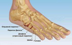 Сколько времени заживает перелом пятой плюсневой кости стопы
