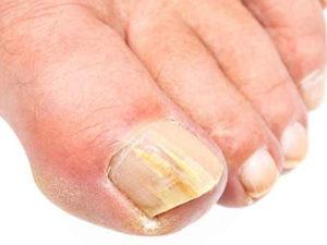 отслаивания ногтей на ногах