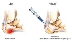 лечить пяточную шпору