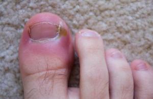 опух большой палец на ноге