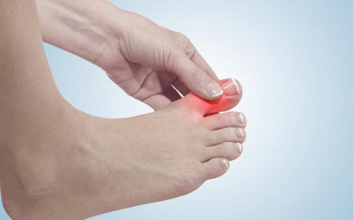 Болит косточка под большим пальцем ноги