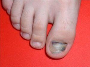 посинел ноготь на большом пальце ноги