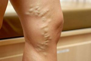 тромб в ноге