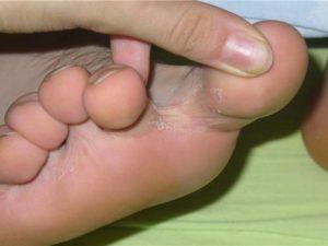 болезненное образование между пальцами ног