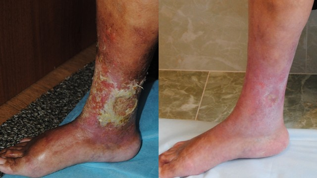 трофическая язва на ноге лечение фото