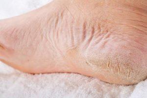 сухая кожа на стопах ног