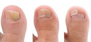 уксус от грибка ногтей