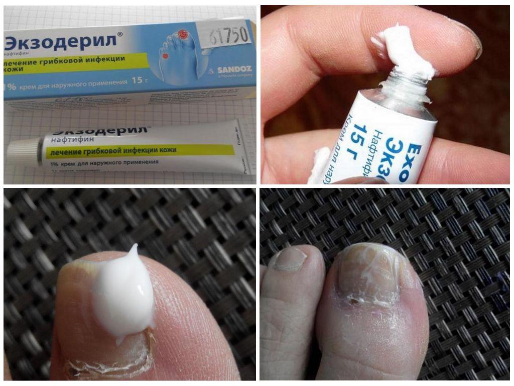 Экзодерил помогает от грибка ногтей на ногах