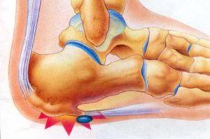 лечение шпоры на пятке Димексидом