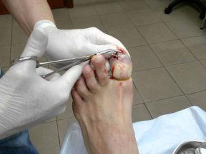 удаление ногтя на ноге