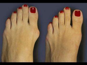 удаление шишек на ногах