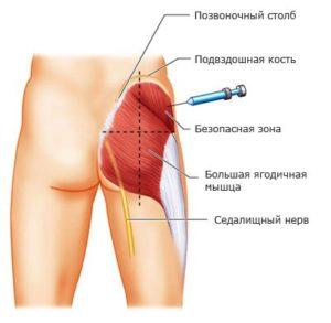 уколы при артрите стопы