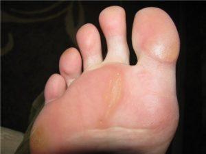 Мозоли на ступнях ног
