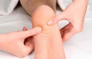 лечение шипов на пятках