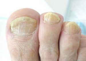 желтеют ногти на ногах