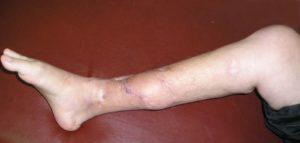 лечение остеомиелита кости ноги