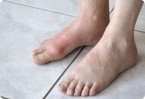 ревматоидный артрит голеностопного сустава