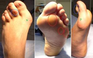 лечение шишки на ноге на подъеме