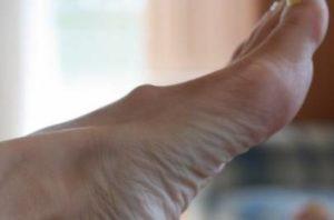Симптомы и лечение шишки на ноге на подъеме