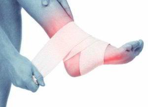 лечение тендинита стопы