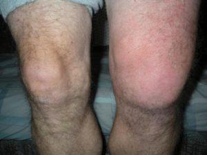 колено опухло и болит при сгибании