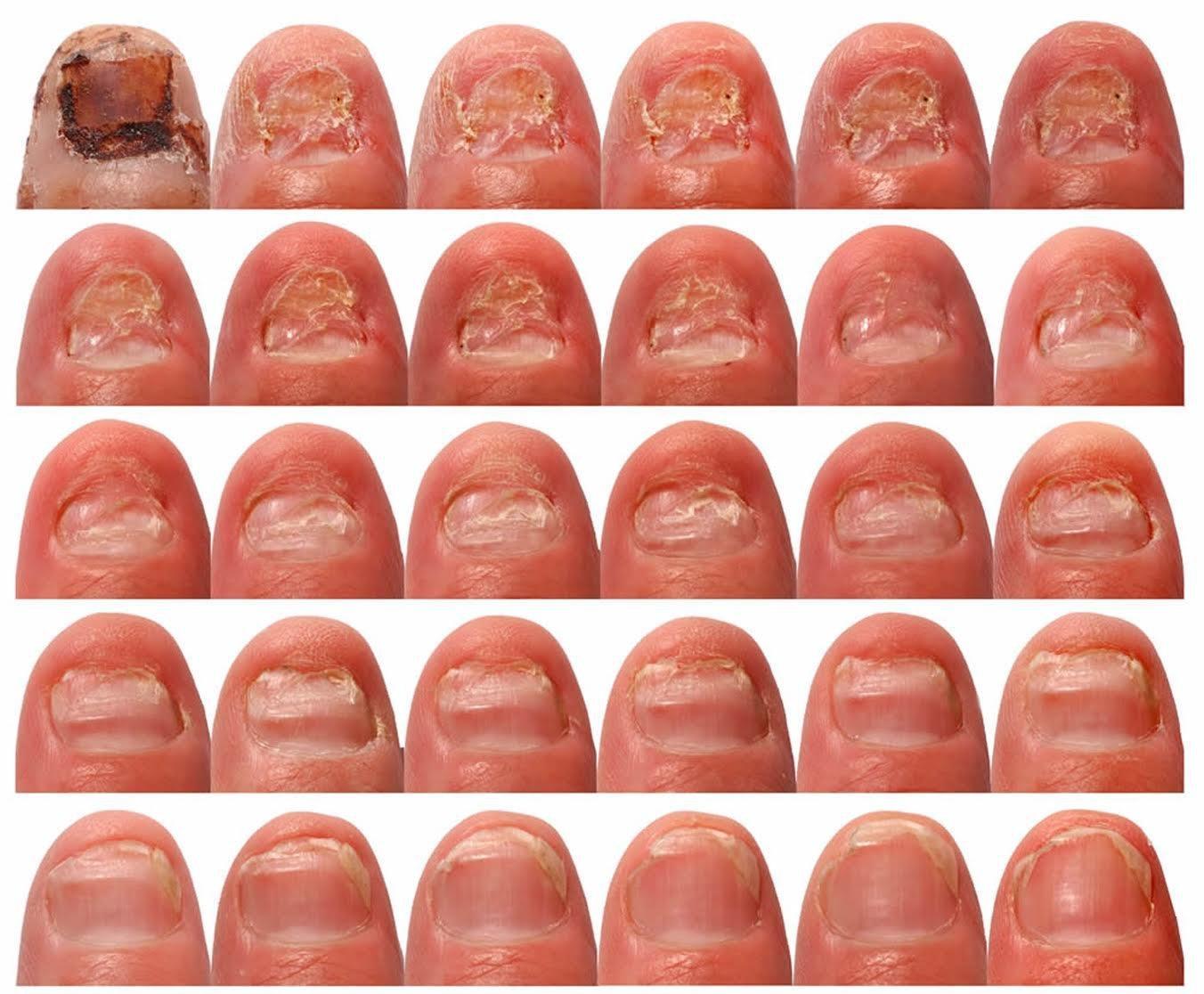 Лаки грибок ногтей на руках начальная стадия