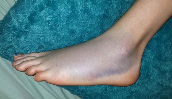 Как сделать синеву на ноге